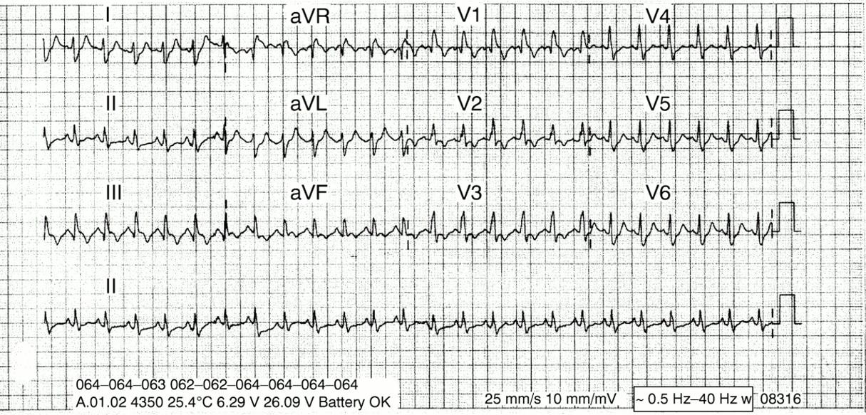 Hyperventilation: cause or effect? | Emergency Medicine Journal