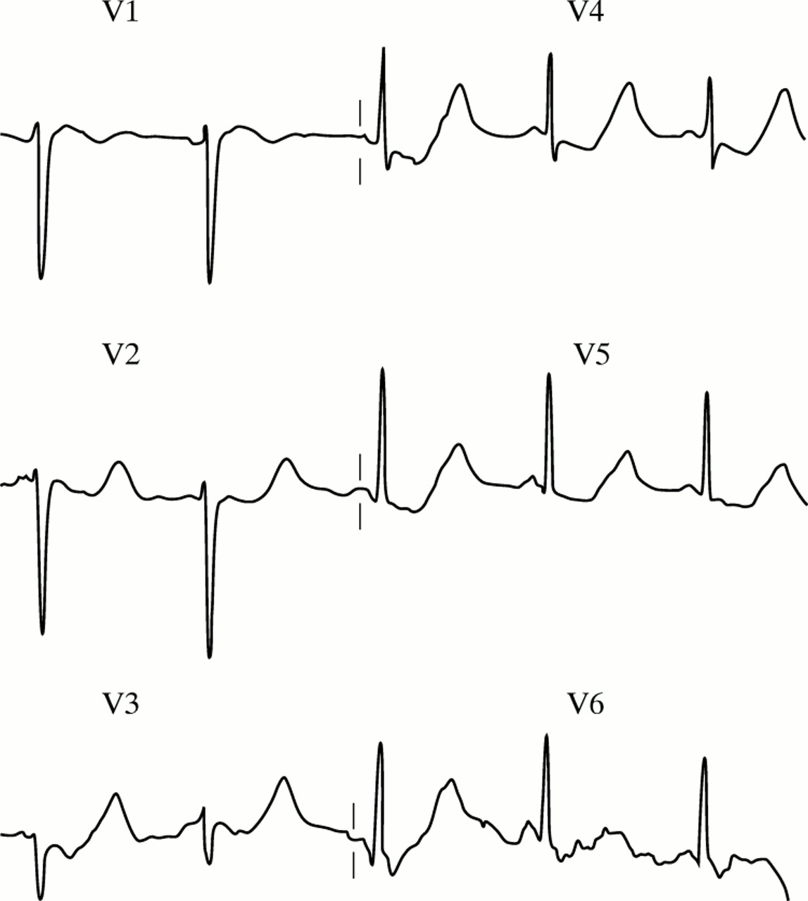 Recognising signs of danger: ECG changes resulting from an