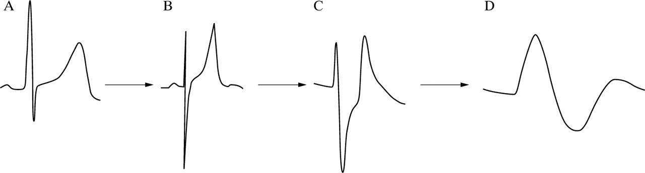 Recognising signs of danger: ECG changes resulting from an abnormal