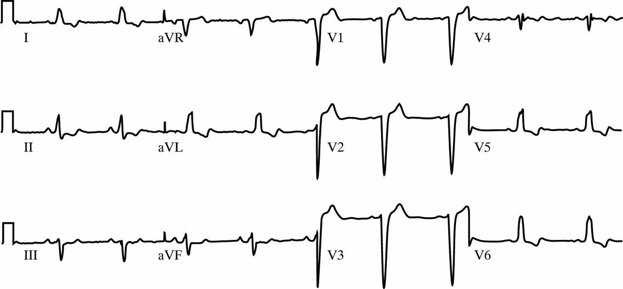The Electrocardiographic Differential Diagnosis Of St Segment
