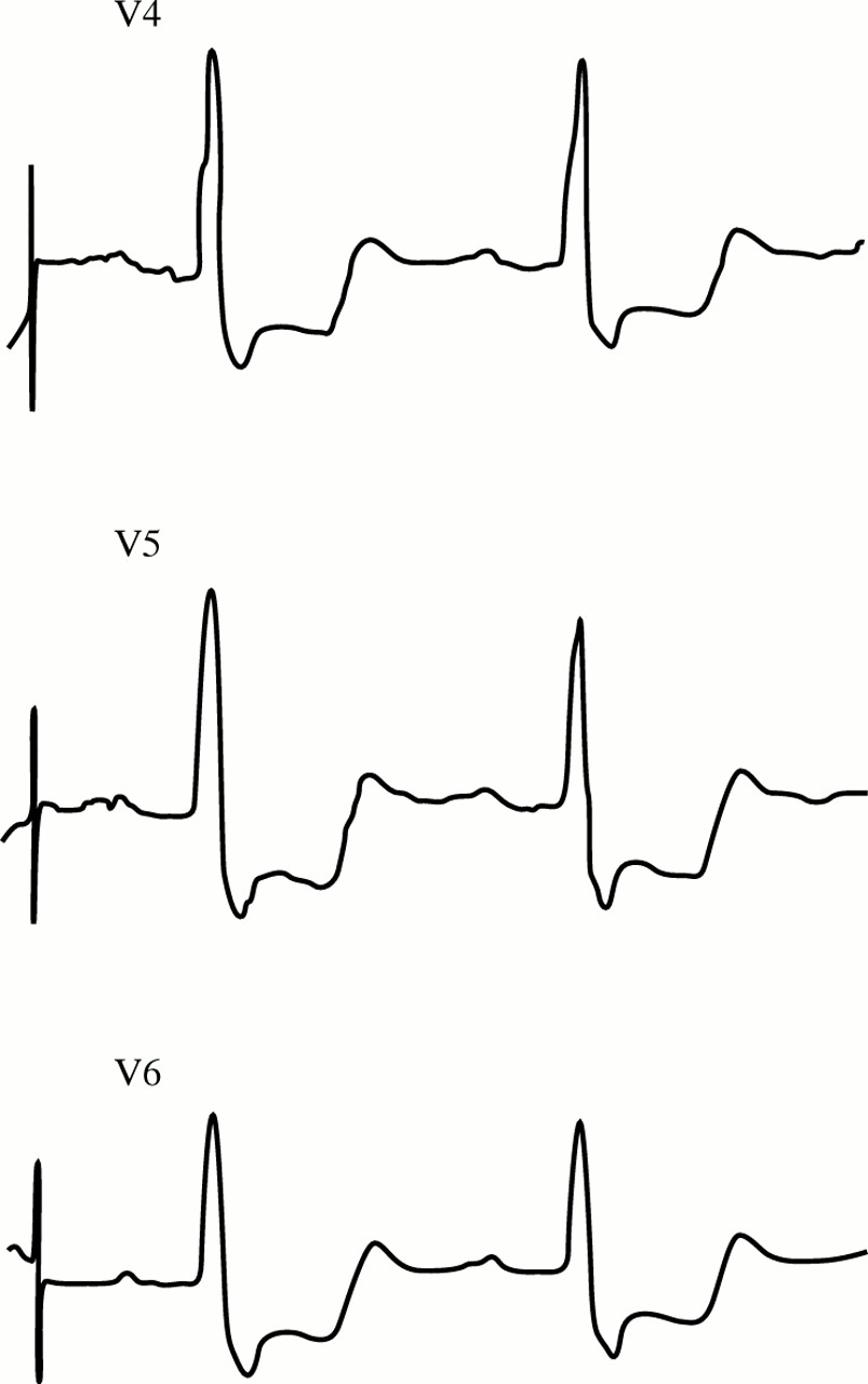 tall t wave in ecg