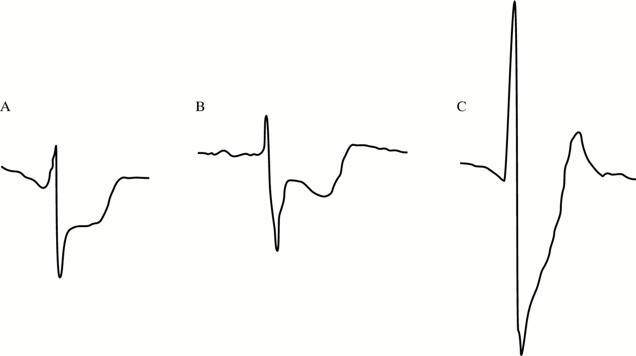 The electrocardiographic differential diagnosis of ST segment ...