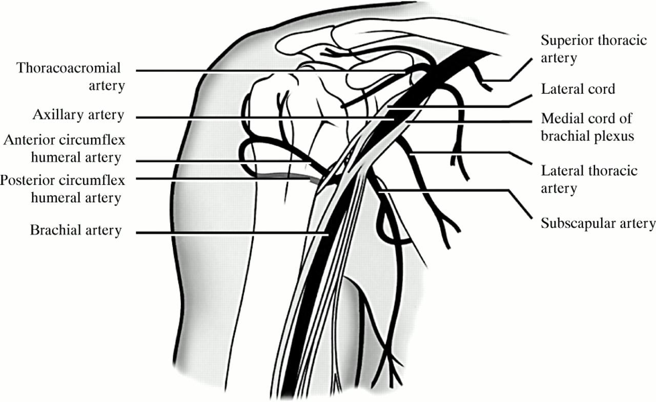 Anterior Shoulder Dislocation An Unusual Complication Emergency