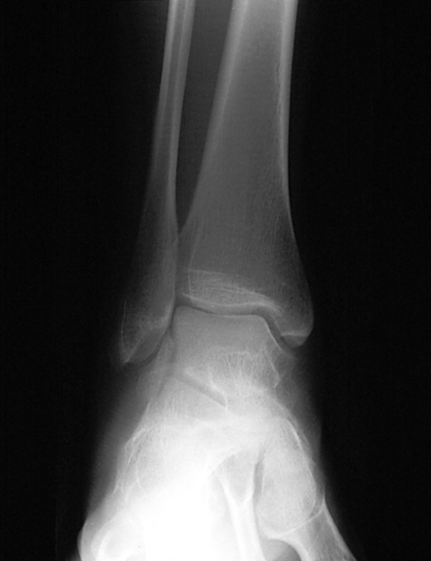 Talus foot. Fracture of the talus of the foot: consequences 51