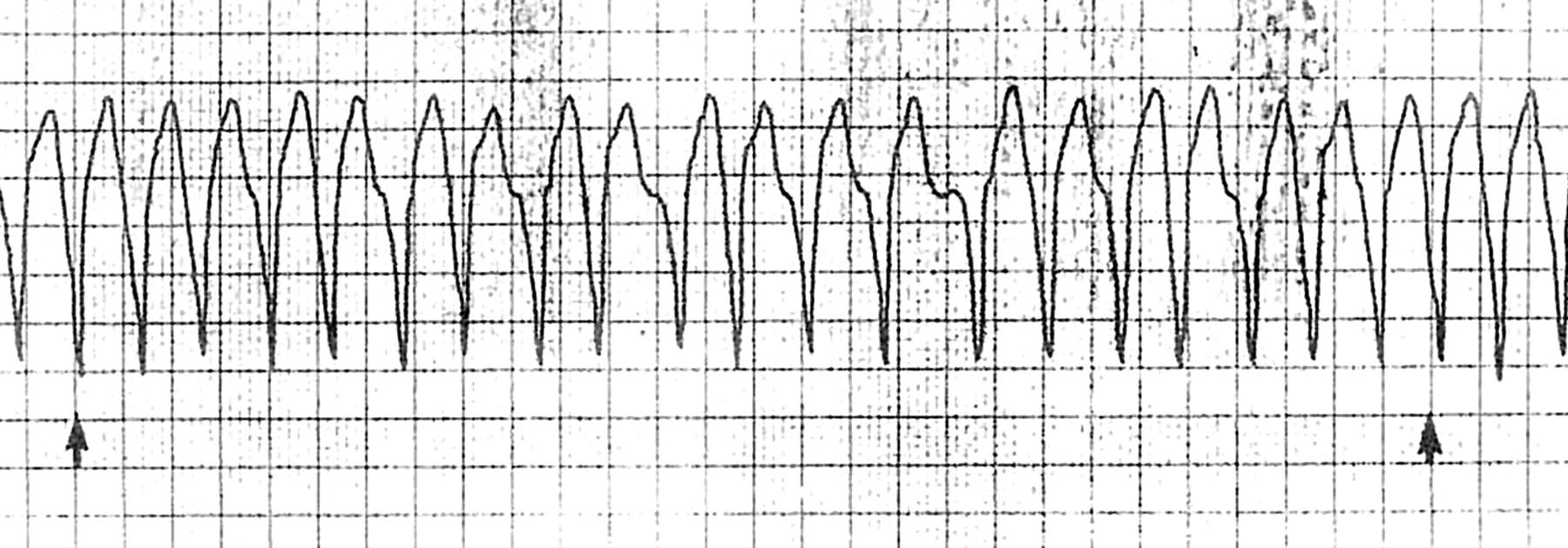 Синдром вольфа паркинсона уайта у детей фото