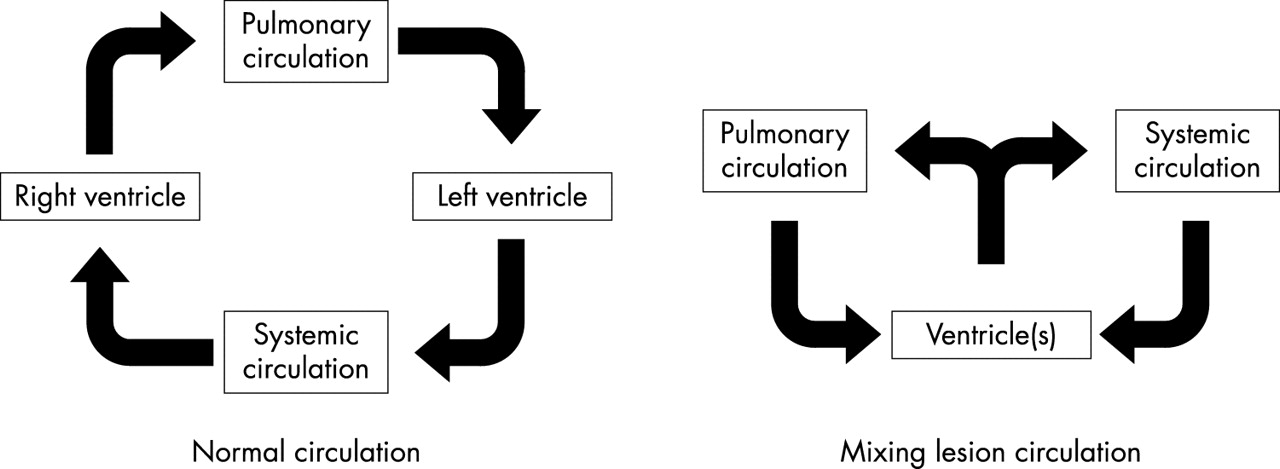 hypoventilation and hypoxia in reversal of cardiogenic shock in an infant with congenital heart