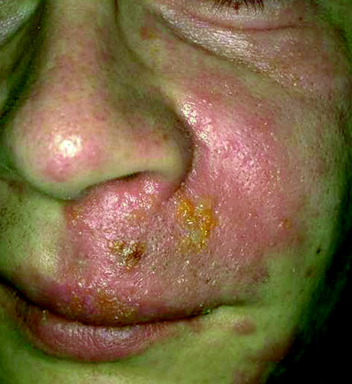 8 Management of allergy, rashes, and itching   Emergency Medicine