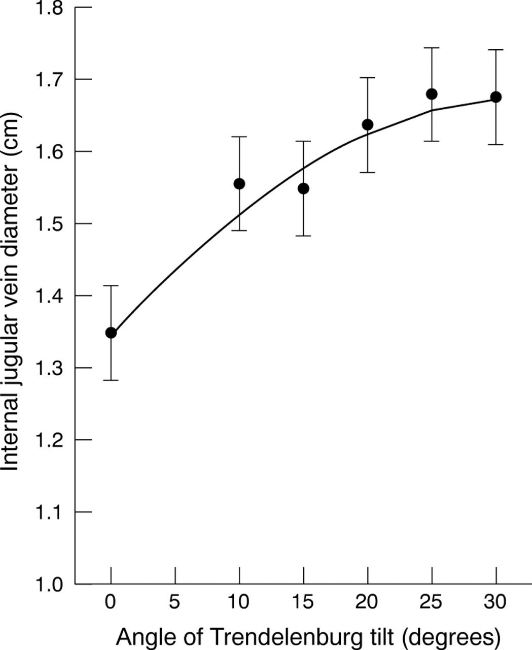Relationship between Trendelenburg tilt and internal jugular vein ...