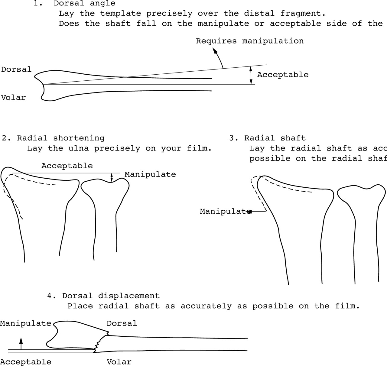 The Use Of A Template To Improve Management Distal Radial Block Diagram Manipulation Download Figure