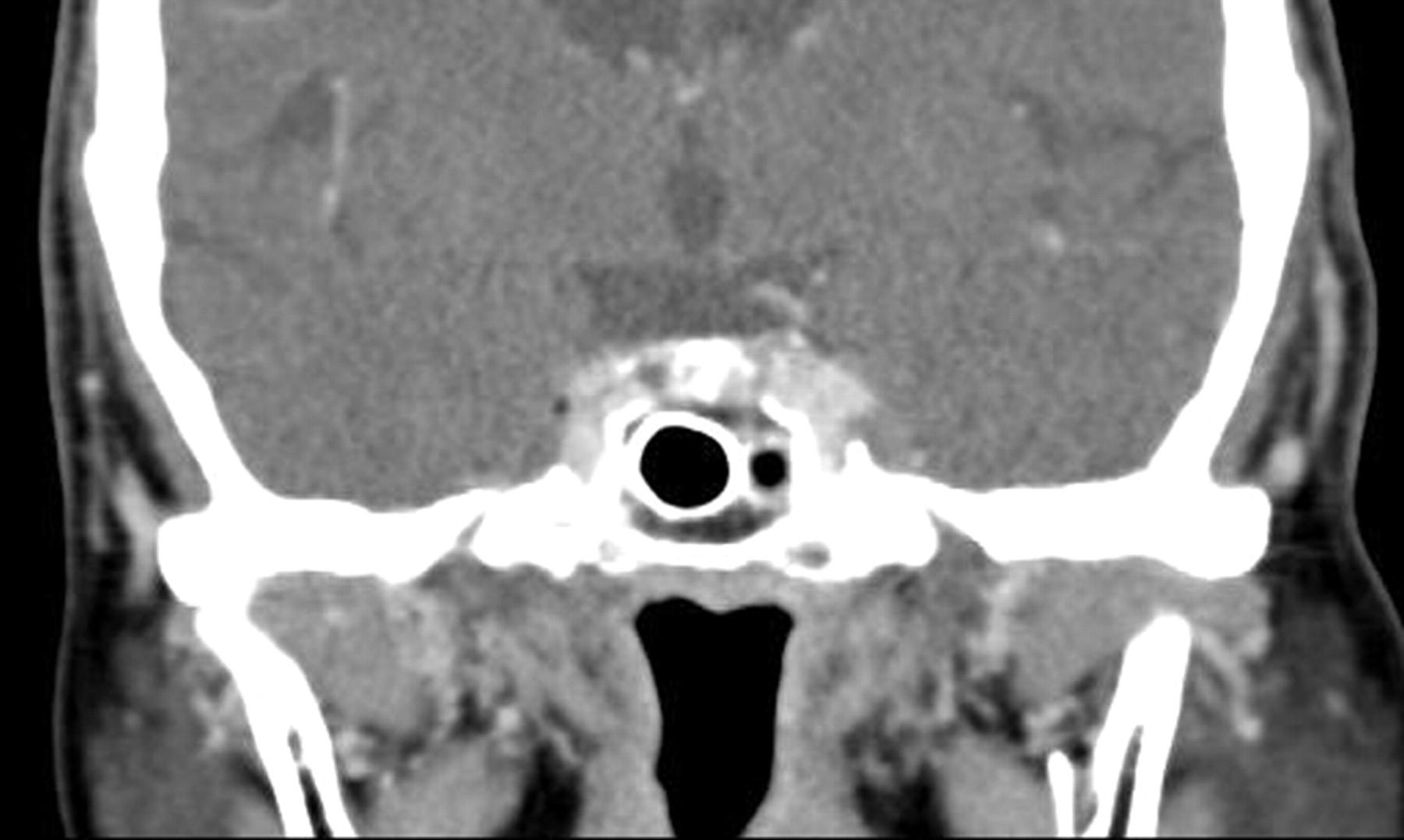 Cavernous+sinus+thrombosis+mri+findings
