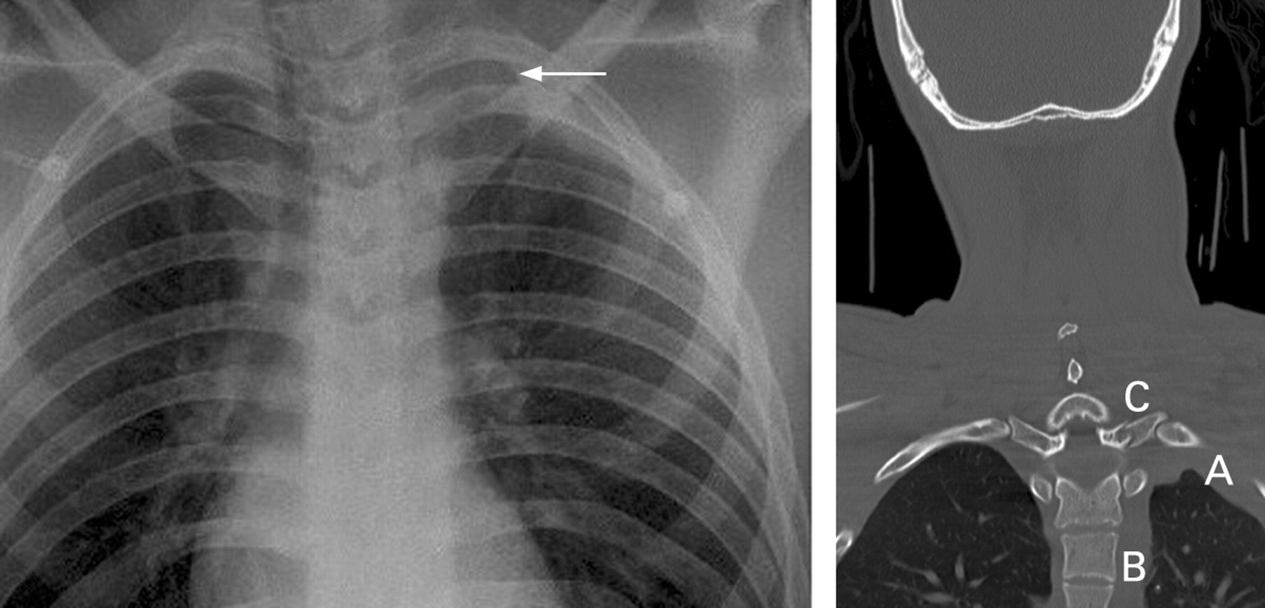 Apical Left Extrapleural Cap An Early And Important Sign