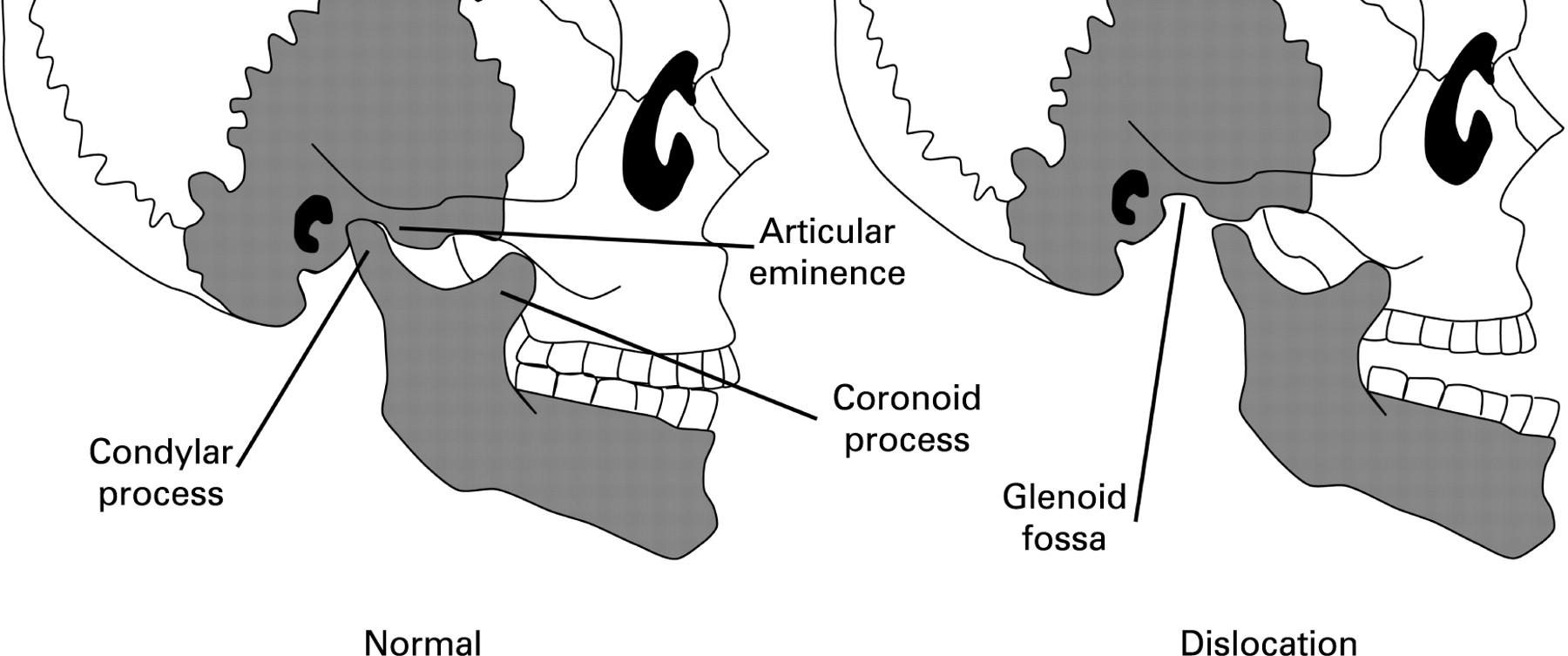 Bilateral temporomandibular joint dislocation following pulmonary ...
