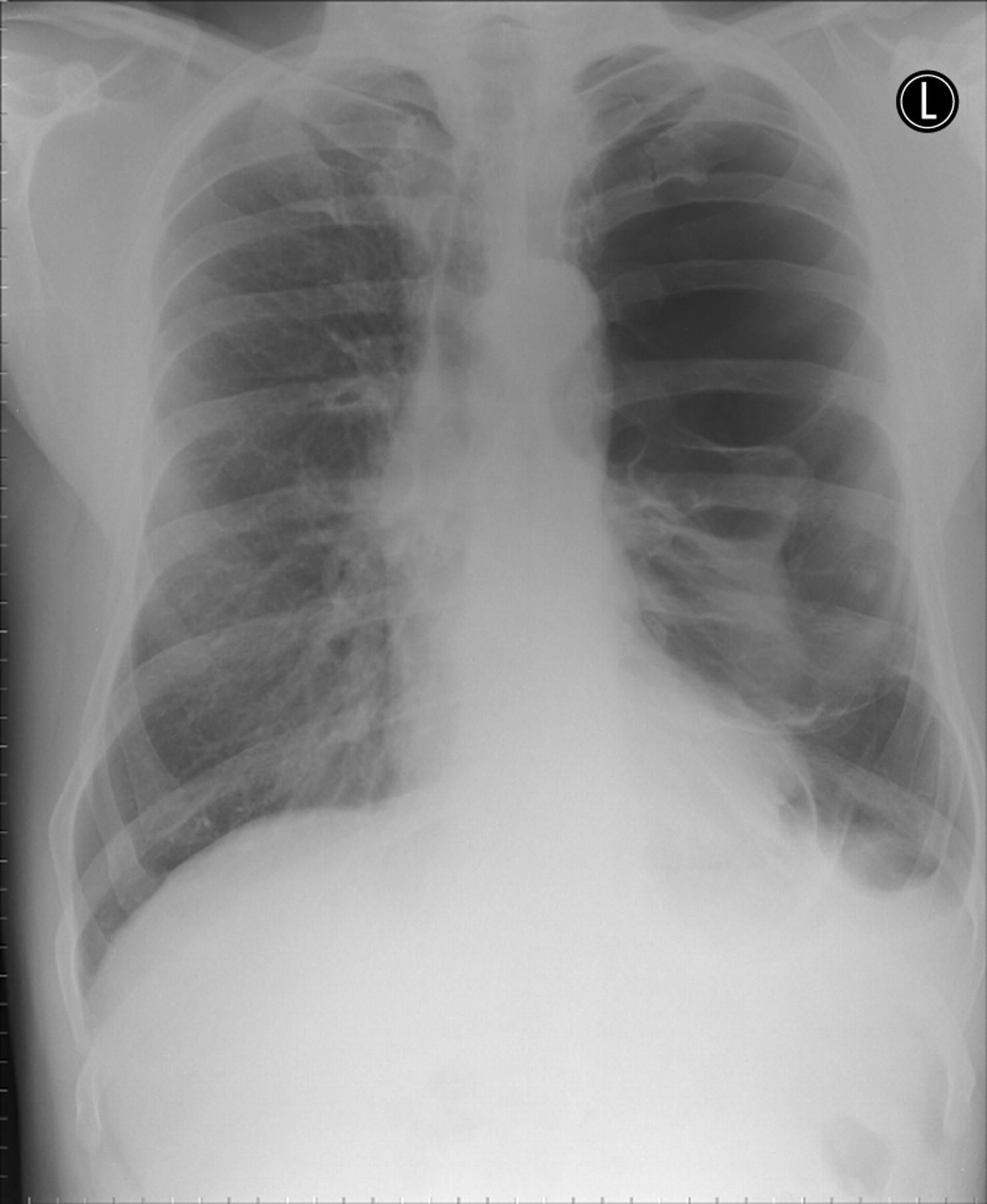 Secondary Spontaneous Pneumothorax Indication For