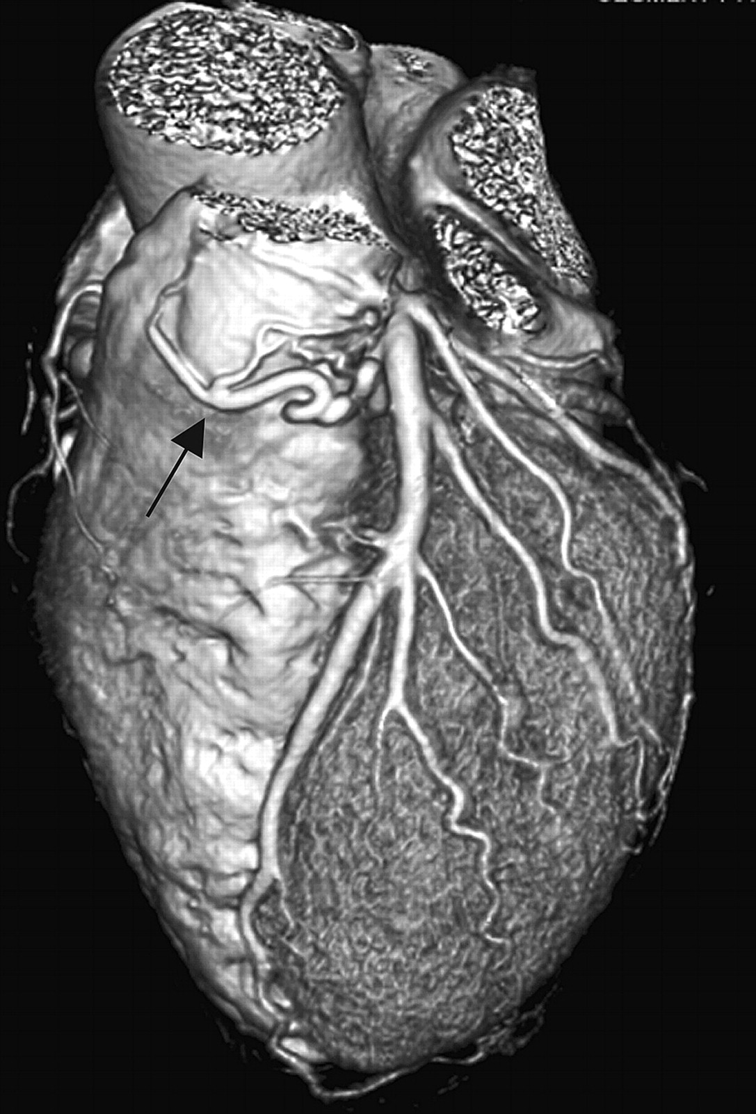 Coronary pulmonary fistula | Emergency Medicine Journal