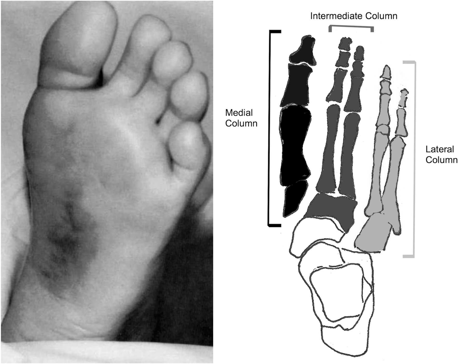 Lisfranc fracture dislocation: a review of a commonly missed injury ...