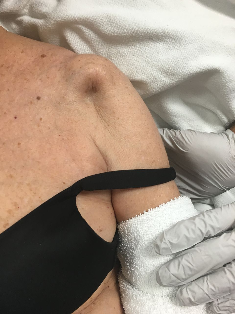 Dimple On The Shoulder After A Ski Injury Emergency
