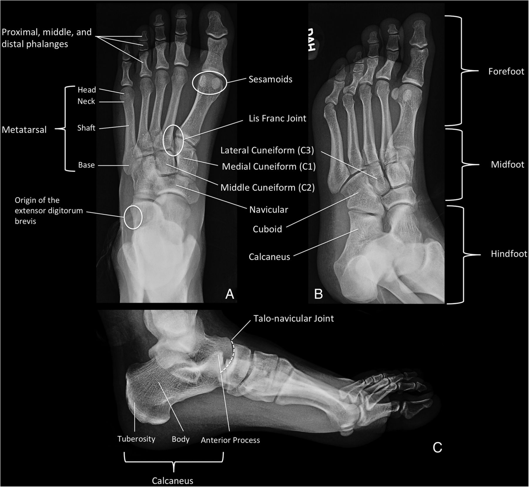 Osseous injuries of the foot: an imaging review. Part 1: the ...