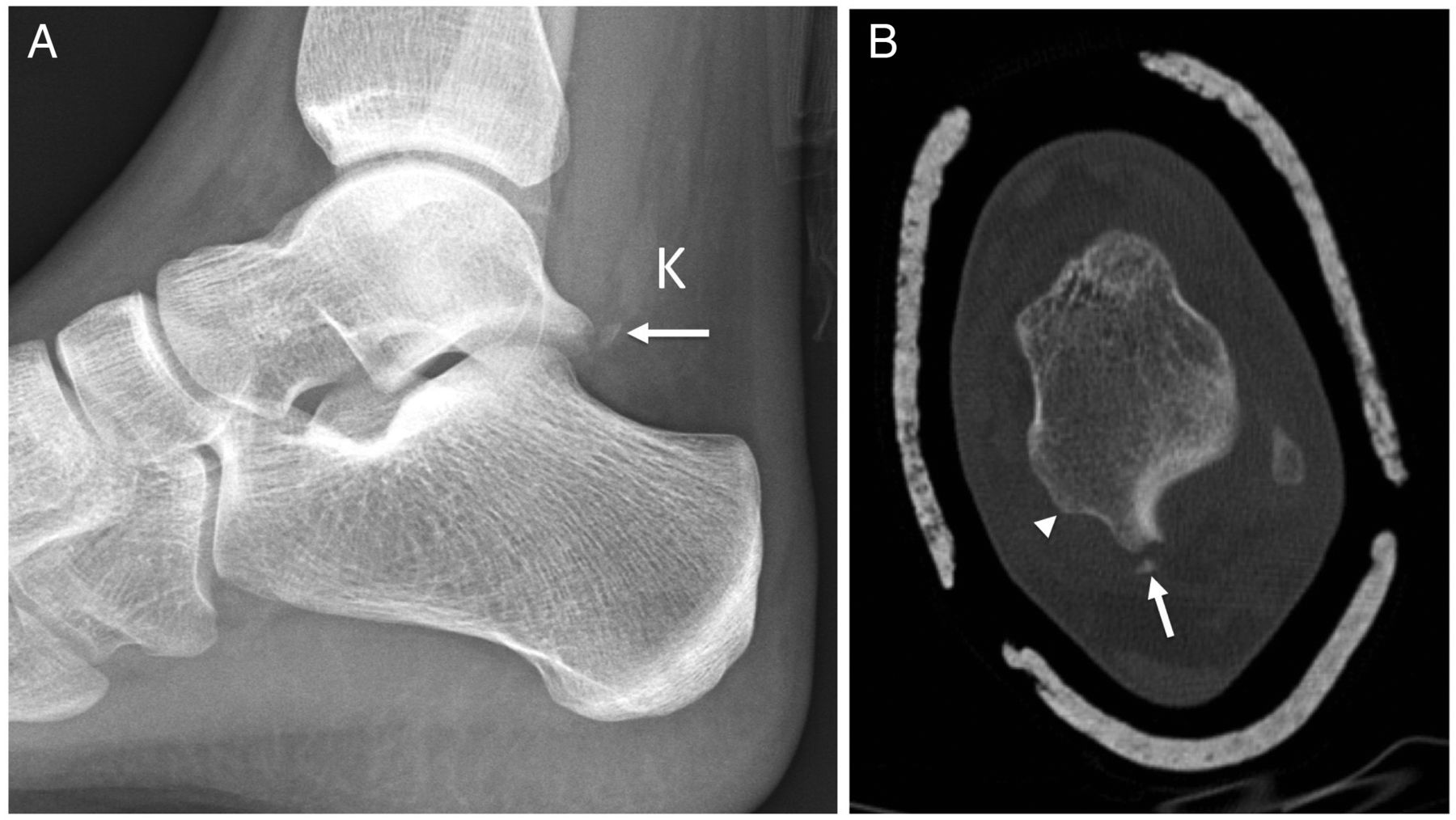 Osseous Injuries Of The Foot An Imaging Review Part 3 The