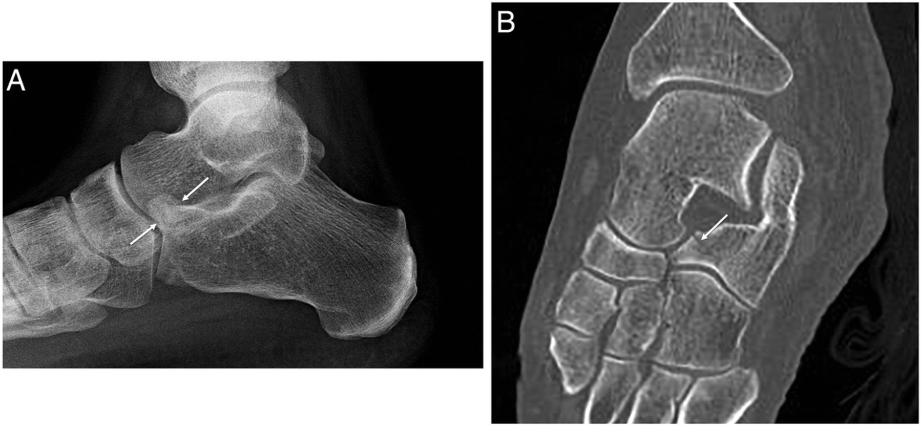 Osseous injuries of the foot: an imaging review. Part 3: the ...